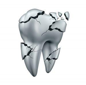 broken tooth from teeth grinding