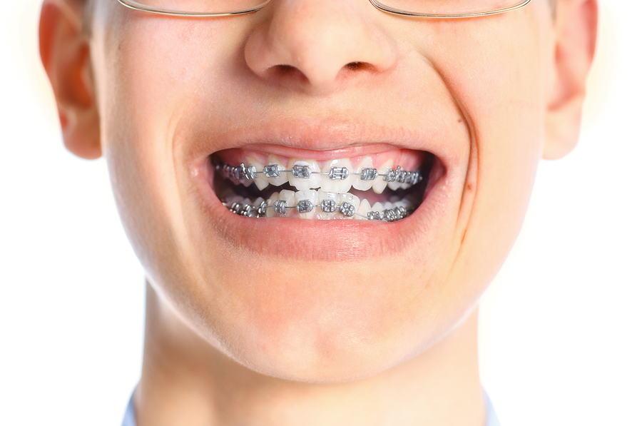 Close-up of teen girl's mouth showing she is wearing metal braces