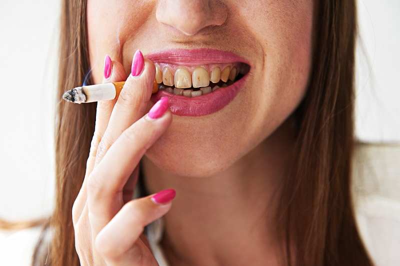 smoking yellow teeth need whitening in Las Vegas