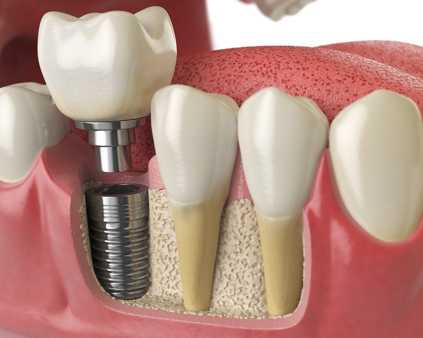 Las Vegas dental implants depiction