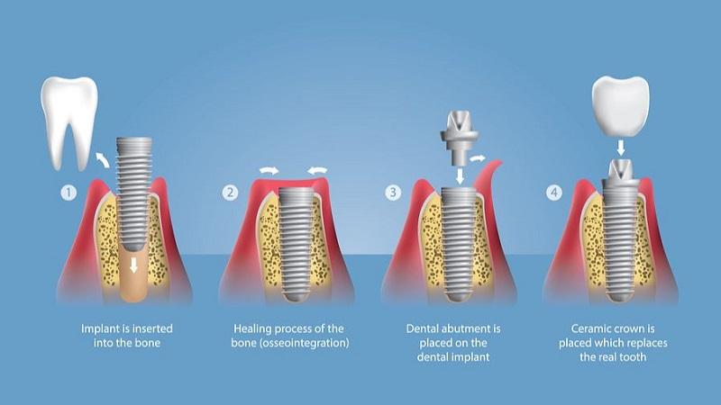 las vegas dental implant chart snip