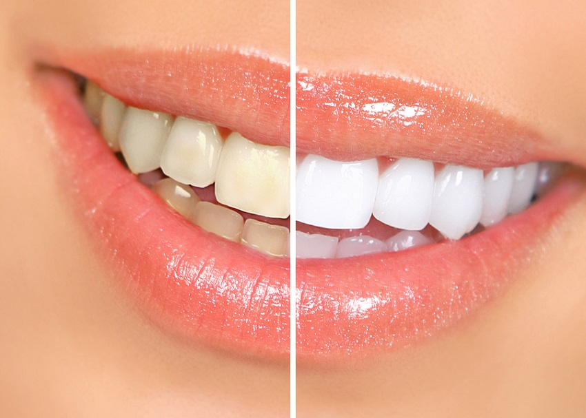 Las Vegas tooth whitening dentist