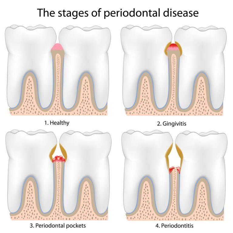 stages of periodontal disease for diagnosis