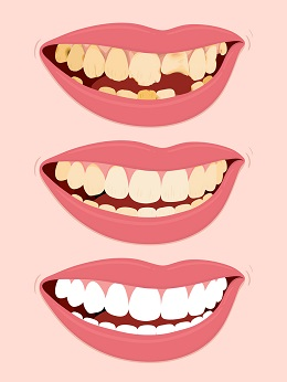 stages of teeth restoration