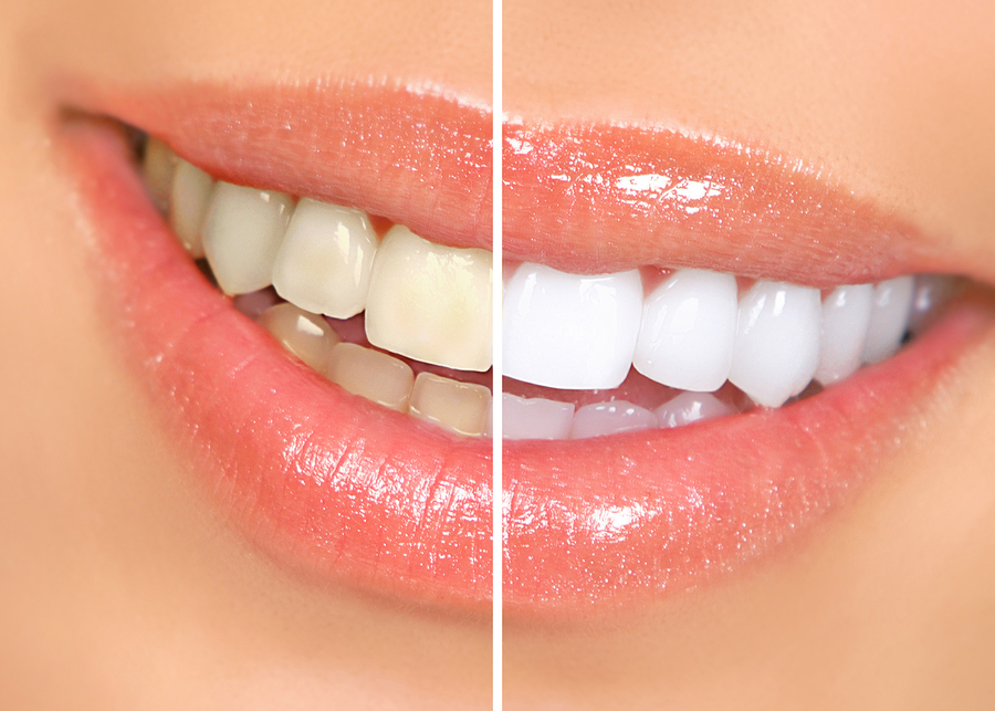 Mouth and teeth before and after teeth whitening