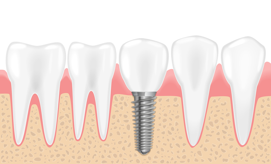 Healthy teeth and dental implant. Realistic vector illustration of tooth medical dentistry. Human teeth dental implantation